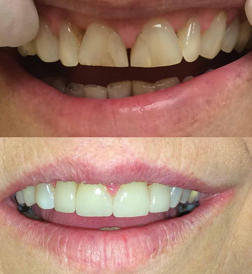 Front-teeth-crowns
