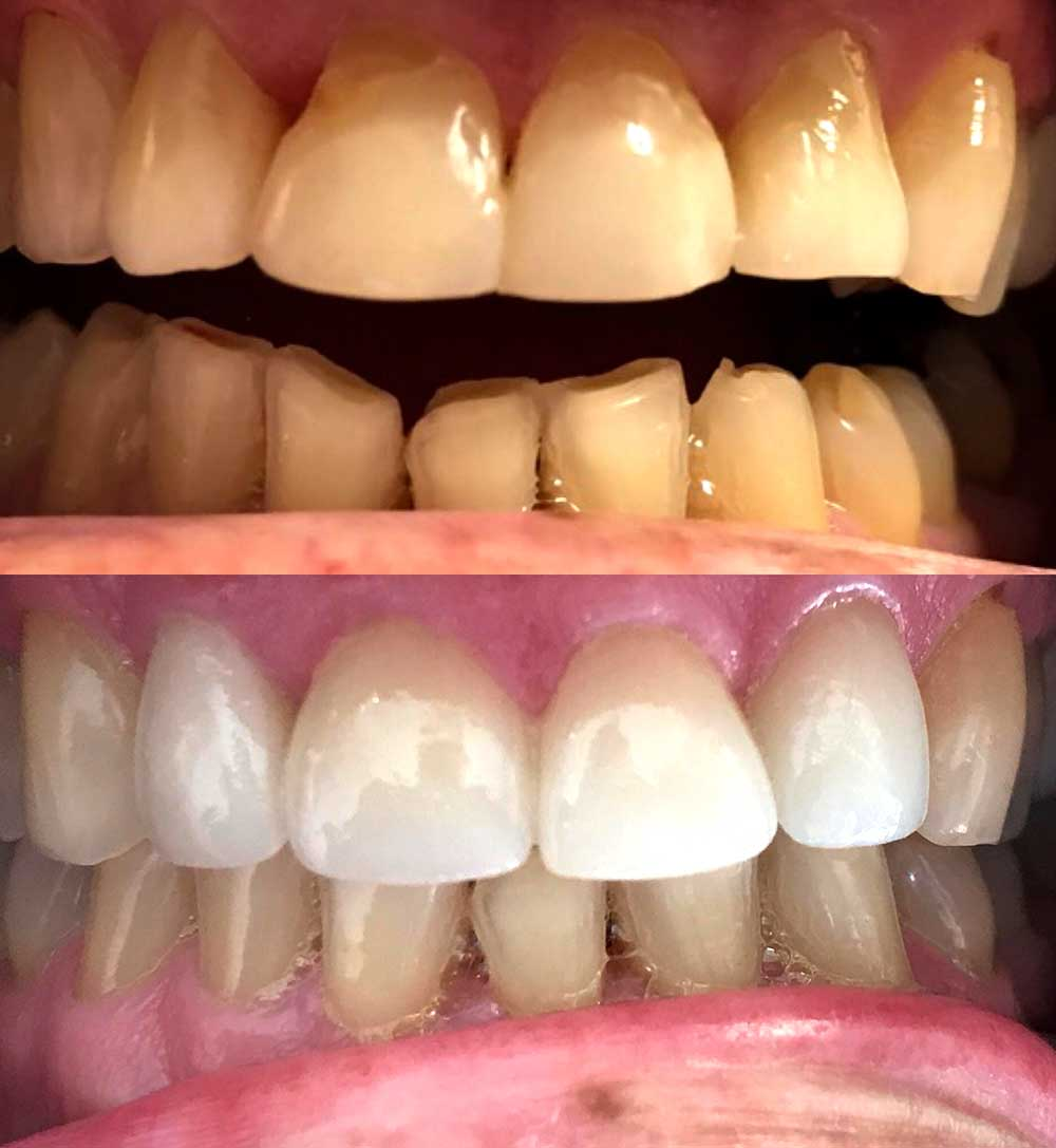 Resin Bonding of upper two front teeth