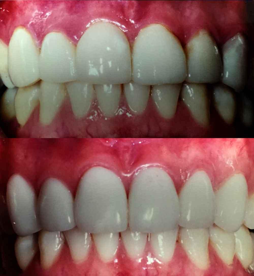 New Porcelain Veneers on upper 6 front teeth (replacing old veneers)