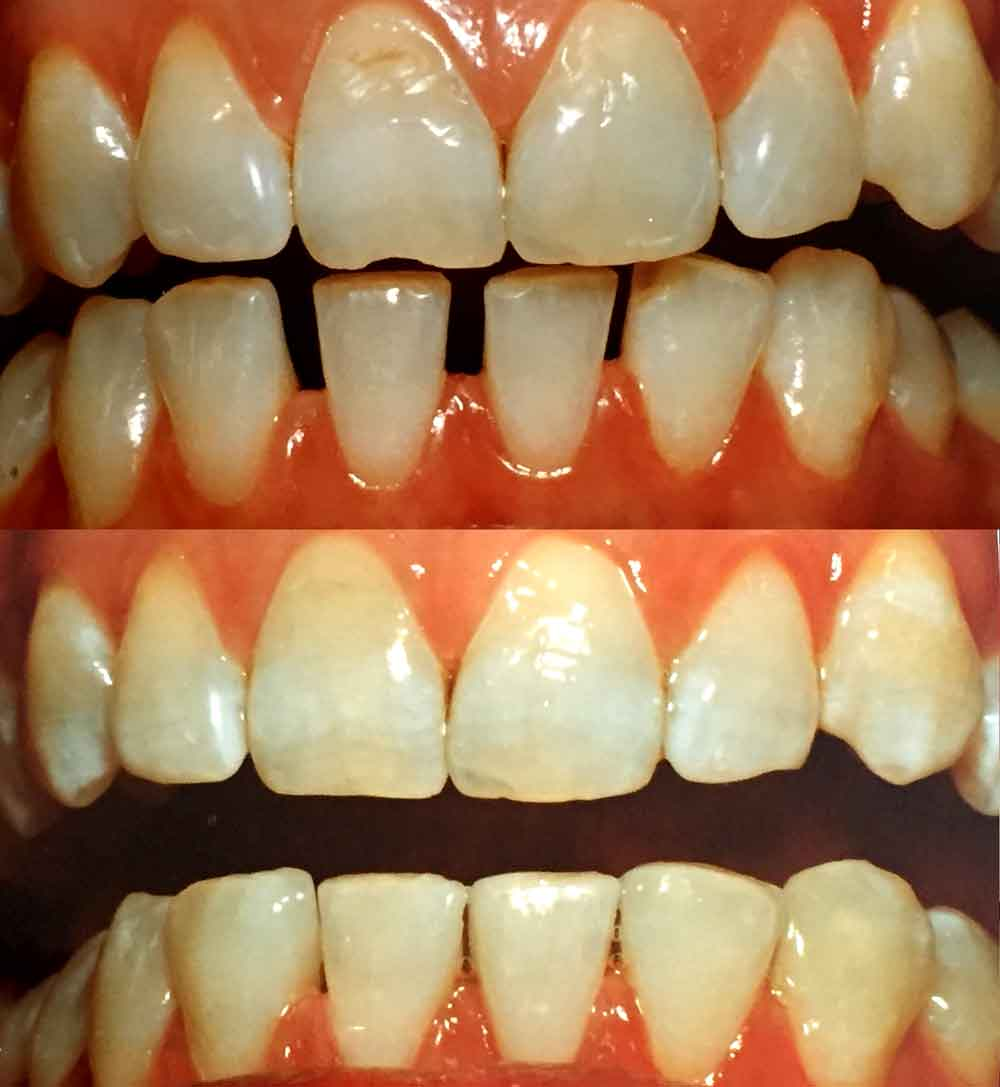 Resin Bonding to close spaces between lower front teeth and repair chipped upper front tooth